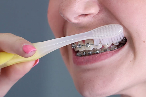 Oral Hygiene For The Orthodontic Patient