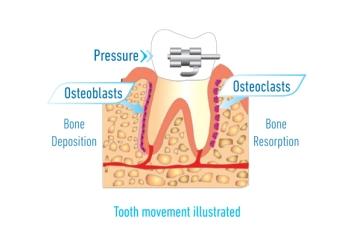 osteodiagragm