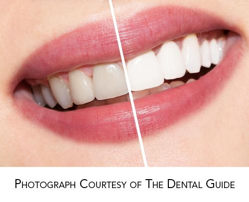 Make Your Teeth Whitening Gel WorkBetter!