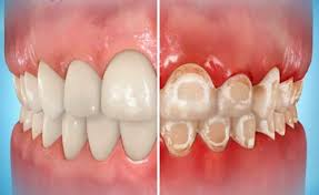Did You Know You Can Get Scars On YourTeeth?