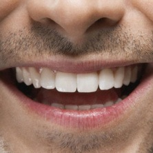 Teeth after braces with good oral hygiene. Picture courtesy of Maximum Living.