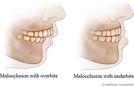 Can Straightening Your Teeth Improve YourPosture?